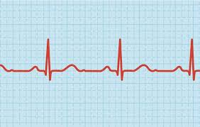 Lower Your Heart Rate to Prevent a Heart Attack   Men