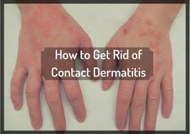 How I Got Rid of Itchy Contact Dermatitis the Natural Way | RemedyGrove
