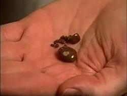 Kidney Stones Michigan Medicine