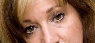 droopy eye