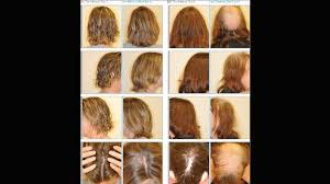 avoid hair loss during chemotherapy