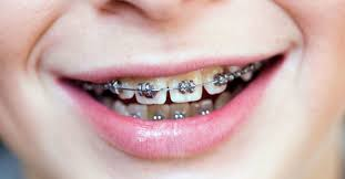 do braces hurt what to expect when you