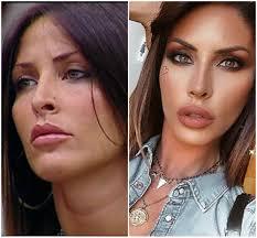 Guendalina Tavassi prima e dopo il bisturi: ecco come è diventata FOTO -  VelvetGossip
