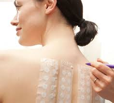 Patch Testing Atlanta GA   Treat Your Allergies At The Source