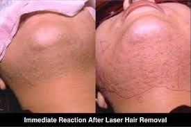 laser hair removal treatment in delhi