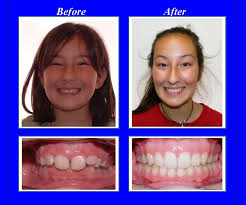 This Patient Had A Severe Overbite We Used Invisalign