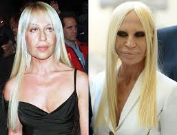 donatella versace before and after plastic surgery 04 celebrity plastic surgery