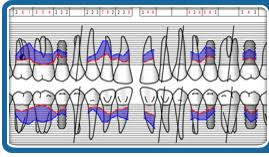 Dental And Periodontal Charting Perio Tools Department Of Periodontology School Of