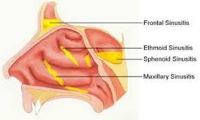 Sinusitis and Sinus Surgery - Dr Garrett Bennett - NY Sinus ...