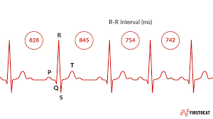 Heart Rate Variability Chart What Is Heart Rate Variability Hrv Why Does It Matter