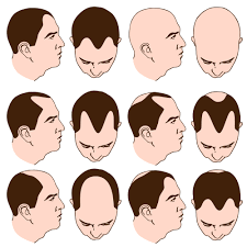 Male Pattern Baldness Stages Cool Design Ideas