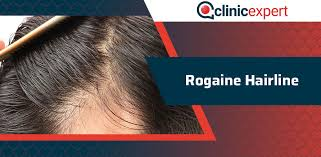 rogaine hairline clinicexpert