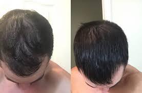 prp hair loss treatment kelowna