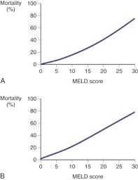 Meld Score Survival Chart Model For End Stage Liver Disease An Overview
