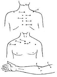 Методика массажа при бронхиальной астме Когда дома больной  referats allbest ru