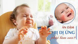 Trẻ ăn dặm bị dị ứng thức ăn và cách xử trí