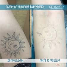 лазерное удаление татуировок и перманентного макияжа медицина киев