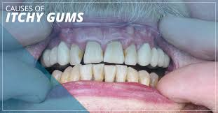 Dental Implants Seattle: Causes Of Itchy Gums