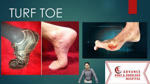 Turf Toe . Great toe Injury - YouTube