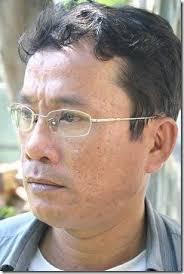 Nhà thơ Nguyễn Trung Bình đã đột ngột qua đời do bạo bệnh hôm Thứ Năm 10.12.2009, lúc 17h10 tại bệnh viện 175 (Sài Gòn), hưởng dương 42 tuổi, theo Âm lịch. - NguyenTrungBinh2_thumb