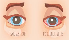 pink eye what are the symptoms and how