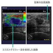 乳がん 検診 エコー