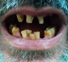 I have one for each of my kiddos near their toothbrushes. Tooth Discoloration Wikipedia