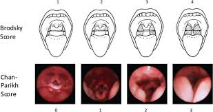 Tonsil Size Chart Comparison Of Brodsky Physical Exam Score And Representative