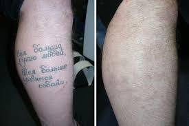 удаление татуировок салон красоты он и она