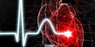 """Résultat de recherche d'images pour """"insuffisance cardiaque"""""""