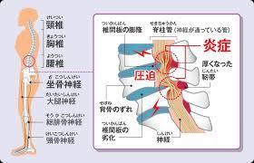脊椎 管 狭窄 症