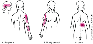 Shoulder Trigger Points Chart Trigger Points Diagnosis And Management American Family