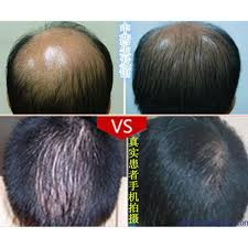 Cure For Male Pattern Baldness Extraordinary Hairstyle Treatment For Receding Hairline Bald Cure Male