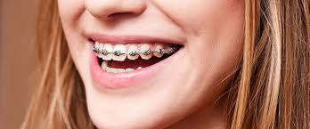 10 ways to relieve mouth pain from braces