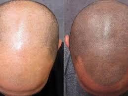 Tetování Vlasů Klady A Zápory O Kterých Byste Měli Vědět Eotazkycz