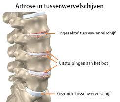 Kliniek voor endoscopische hernia operaties - iprenburg