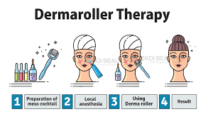 Dermaroller Depth Chart Derma Roller Koi Beauty Medical Stainless Steel Micro Needle