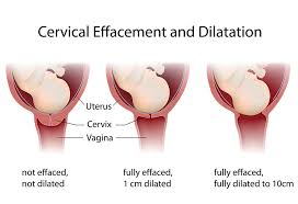 Dilation Of Cervix During Labour Delivery