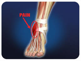 what is remedy for sprained ankle pain