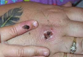 Monkeypox Symptoms Explained As CDC ...
