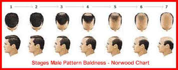 Male Pattern Baldness Cure Extraordinary Stages Of Male Female Pattern Baldness ThinScalp