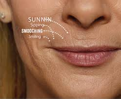 vertical lip lines esteem cal spa