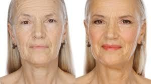 best moisturizer for aging skin over 60