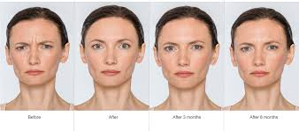 How Long Does Botox Last Botox Inovo Medical Aesthetics