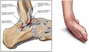 sprained ankle symptoms sprained ankle