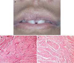 head and neck tumors springerlink