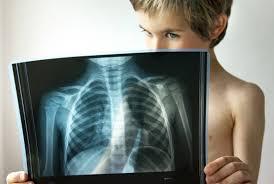 Пневмония у детей симптомы лечение и профилактика воспаления легких Пневмония симптомы у детей