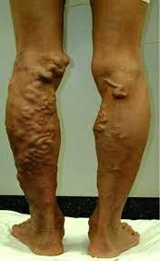 下肢 静脈 瘤
