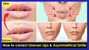 how to correct uneven lips crooked