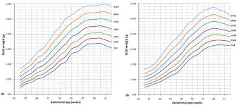 The Percentile Curves Of Birth Weight By Gestational Age For